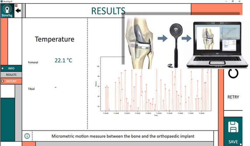 Application for invivo wireless identification and measurements at orthopedic implants